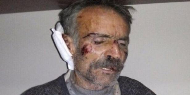 tortured-civilian